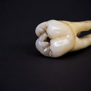Tooth infected with decay.